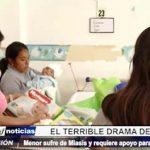 Ayuda Social: Bebé de 3 meses sufre de Miasis y requiere urgente apoyo
