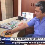Trujillo: Según pediatra la varicela se debe prevenir y no hay que alarmarnos