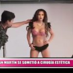Andrea San Martín se sometió a cirugía estética para mejorar su figura