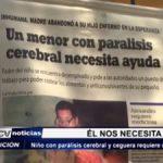 Ayuda social: Niño con parálisis cerebral y ceguera requiere urgente ayuda