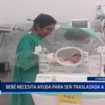 Chimbote: Bebé necesita ayuda para ser trasladada a Lima