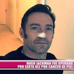 Hugh Jackman fue nuevamente operado de cáncer de piel