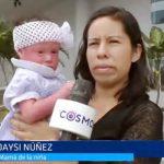 Ayuda Social: Niña con 'ictiosis arlequín' necesita apoyo para tratamiento