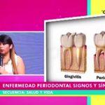 Enfermedad periodontal: signos y síntomas