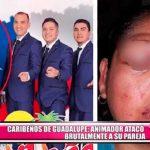 Caribeños de Guadalupe: Animador atacó brutalmente a su pareja