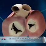 El corazón artificial implantado en paciente de Kazajistán