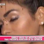 Nacional: Shirley Arica hospitalizada por supuesta agresión por su pareja