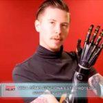 Mira cómo funciona esta prótesis inspirada en videojuegos
