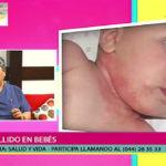 Salud y vida: Sarpullido en bebés