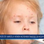 Casos de varicela vienen incrementándose en hospital Belén