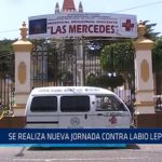 Chiclayo: Se realiza nueva jornada contra labio leporino