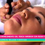 Belleza y Estética: Rejuvenecimiento del tercio inferior con ácido hialurónico