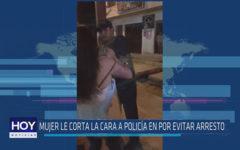 Chiclayo : Mujer le corta la cara a policía para evitar arresto