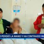 Niño perdió la mano y ha contraido infección