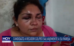 Chiclayo: Candidato a regidor golpeó salvajemente a su pareja