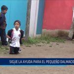 Chiclayo: Sigue la ayuda para el pequeño Dalmacio
