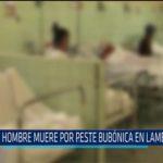 Chiclayo: Hombre muere por peste bubónica en Lambayeque