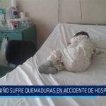 Chiclayo: Niño sufre quemaduras en accidente en hospital
