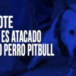 Chimbote: Anciano es atacado por otro perro pitbull