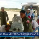 Chiclayo: Trasladan a recién nacido con quemaduras a Lima
