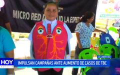 Aumentan personas con TBC, autoridades enfatizan en prevención