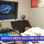 Chiclayo: Despistaje de cáncer de cuello uterino en el Hospital Regional