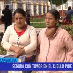 Chiclayo: Señora con tumor en el cuello pide ayuda