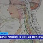 Casos de síndrome de Guillain-Barré disminuyen